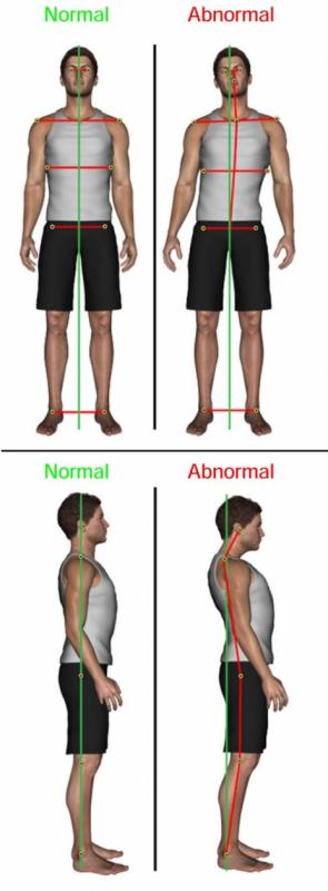Posture health in Dandenong